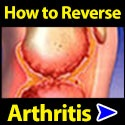 How To Reverse Arthritis