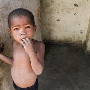 Little Boy - Poverty In Africa - Photo by Herman Pieters